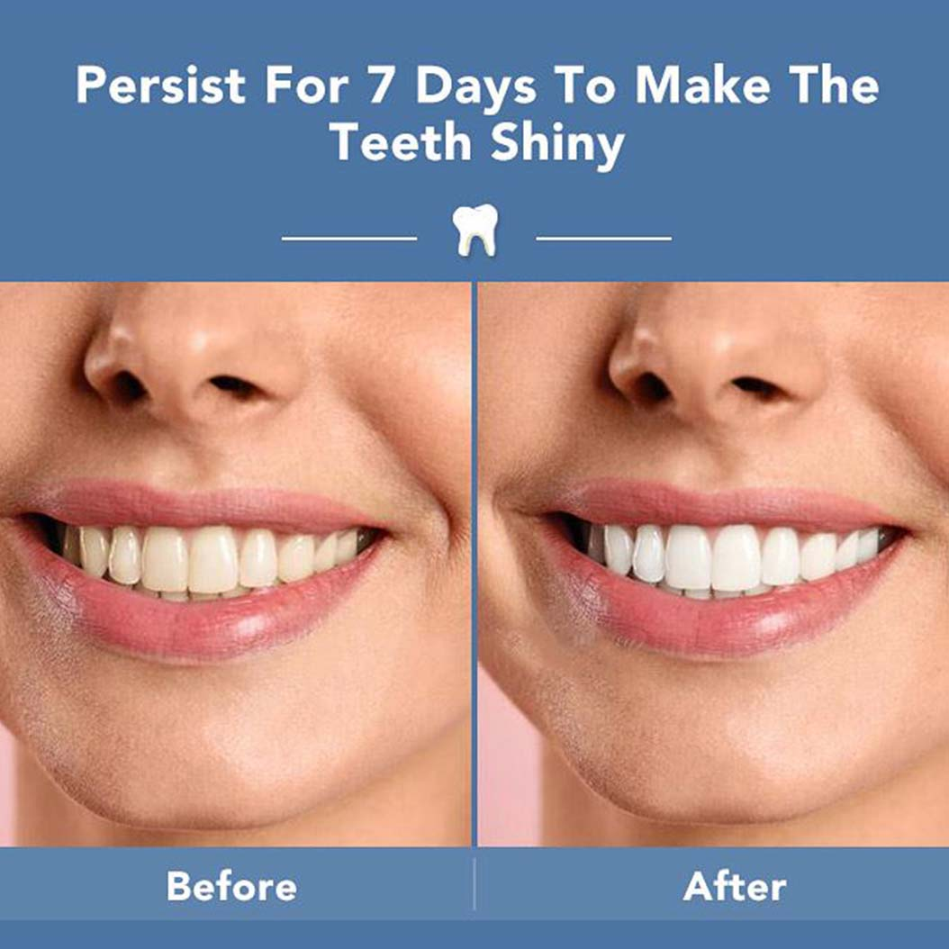 teeth whitening strips before and after